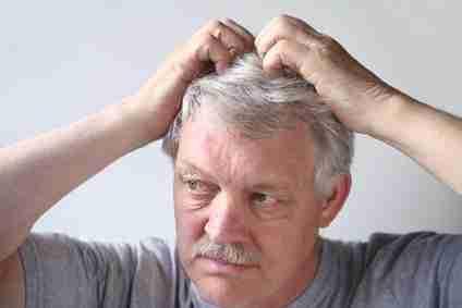 Cara Merawat Kulit Kepala Kering