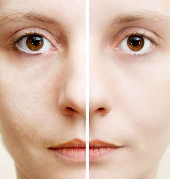 How To Make Pores On Nose Smaller Naturally