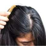 Get Rid Of Oily Scalp